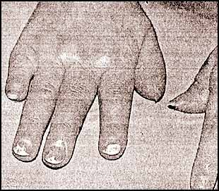 El modo eficaz de la lucha contra el hongo de los pies